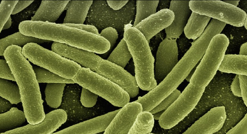 Man, 41, fighting for his life in Namibia's first case of listeriosis